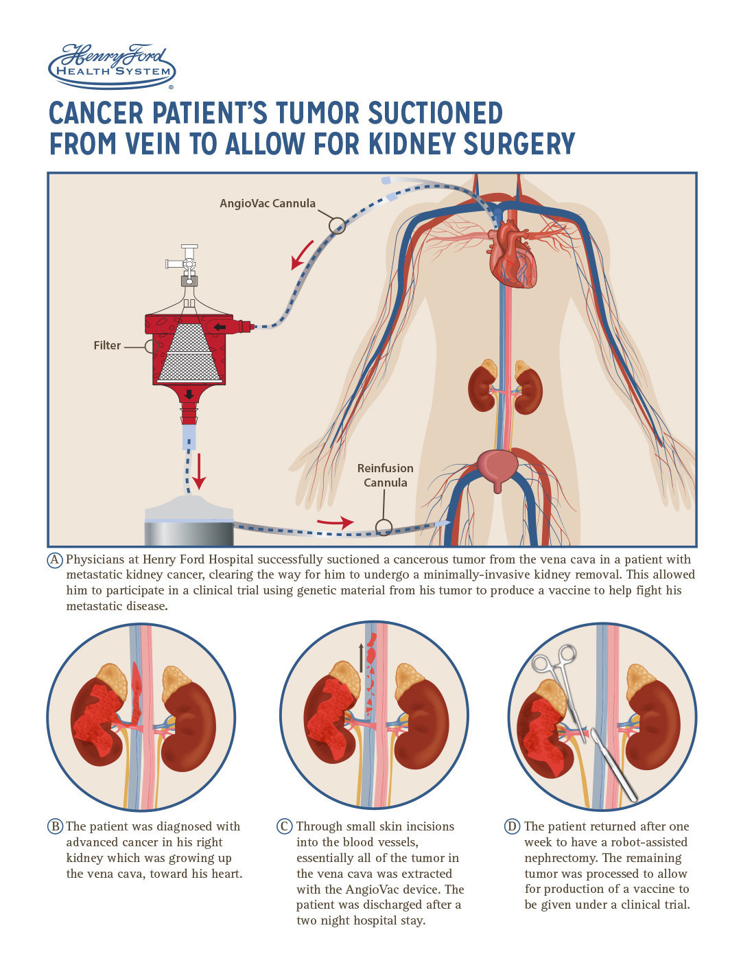 Henry Ford Hospital AngioVac Procedure Infographic